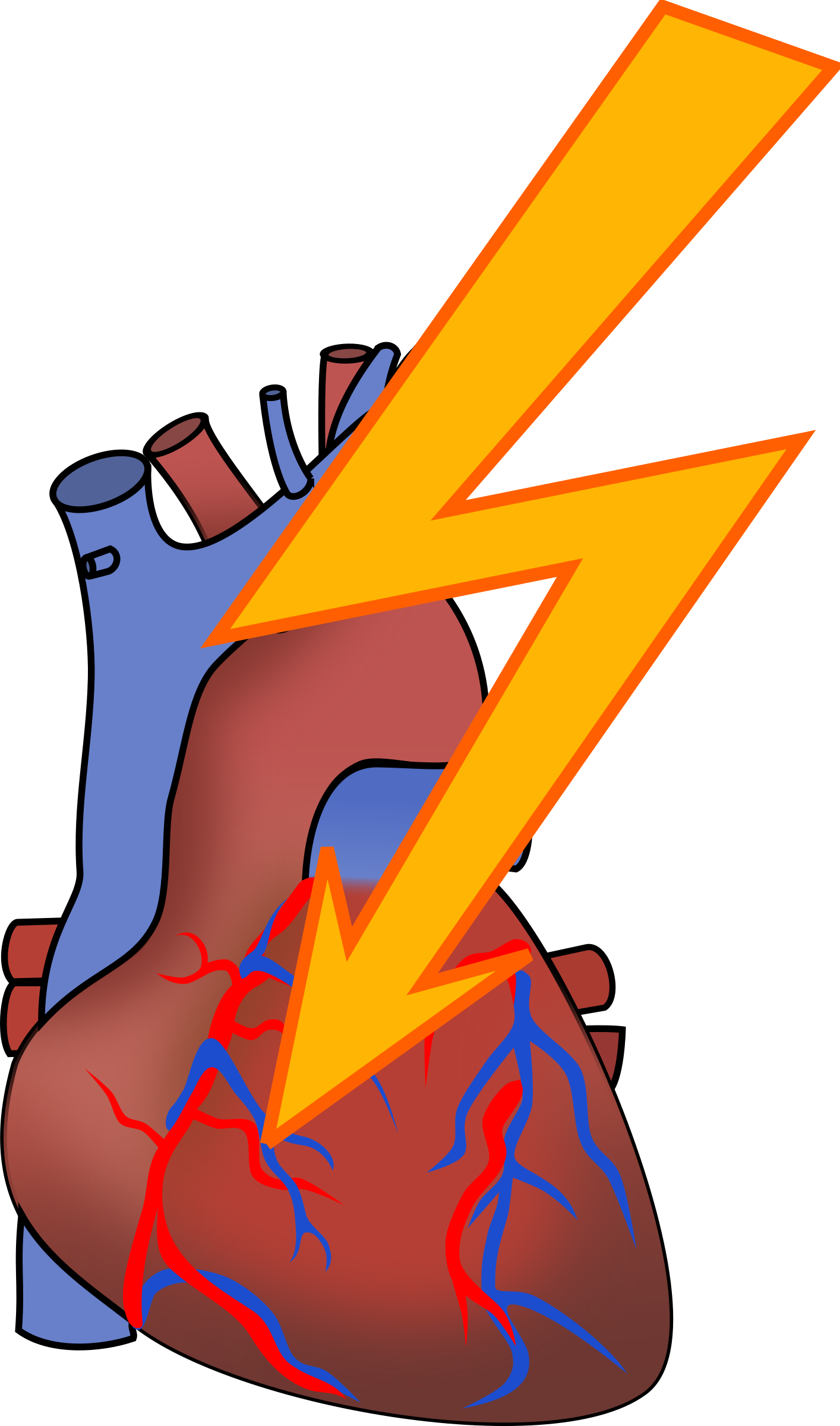 Clipart - Heart attack
