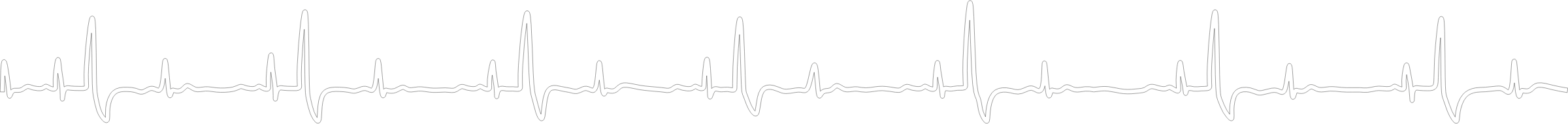 Electrocardiogram Line by pogoneo