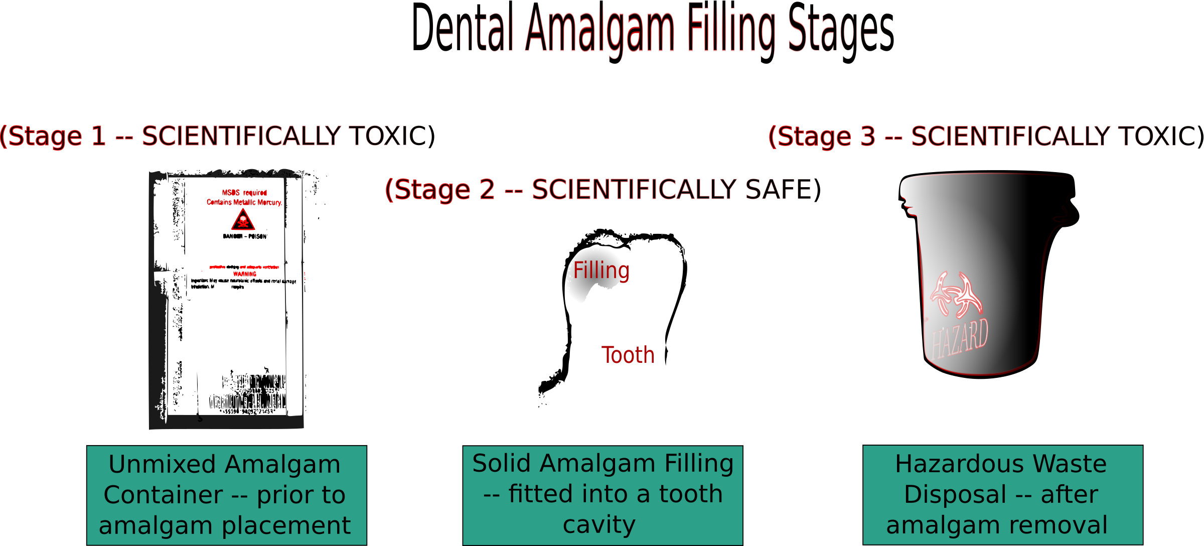 Dental Amalgam Filling Stages by cibo00
