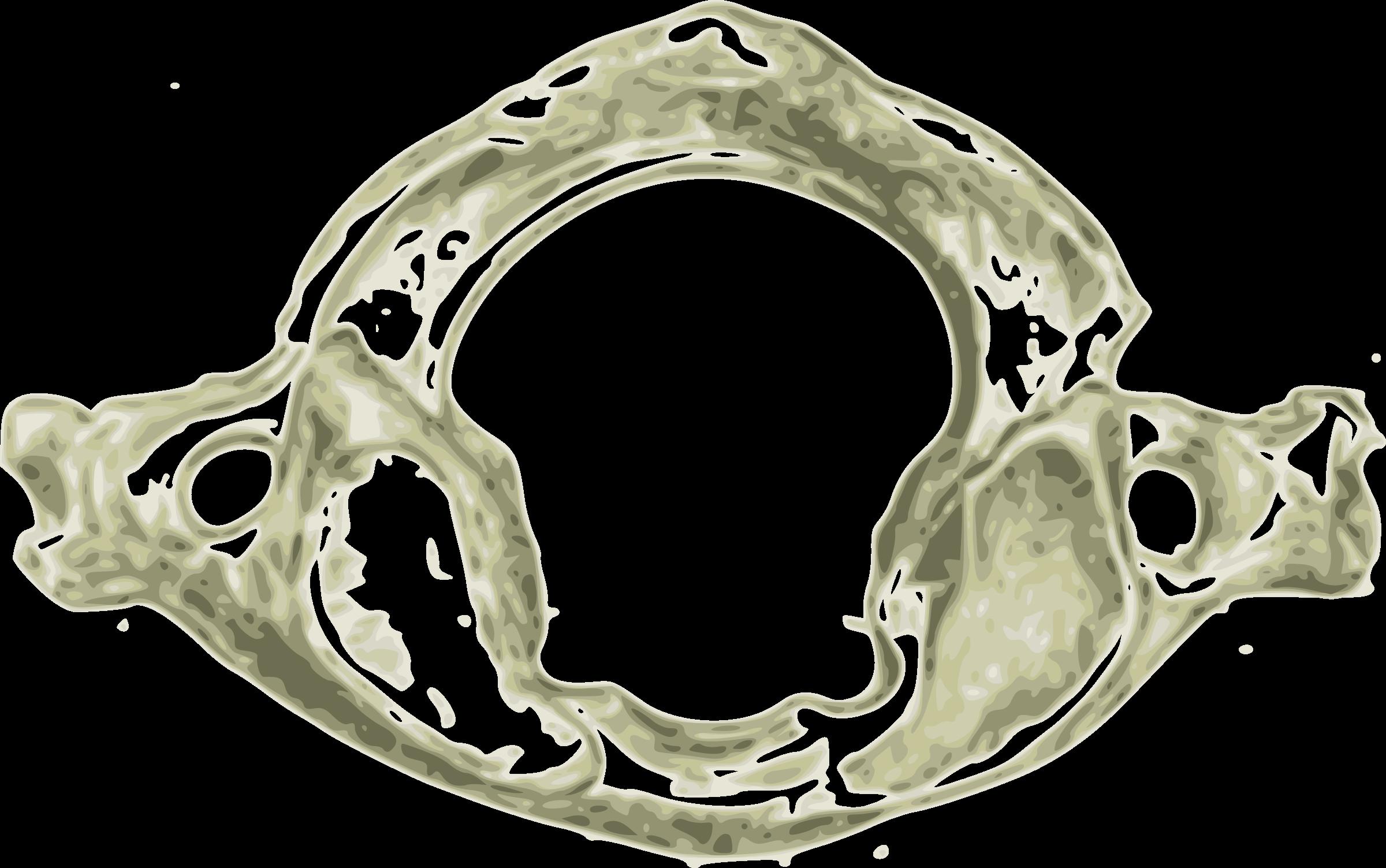 Clipart - Atlas First human cervical vertebra C1 (First Cervical spine)