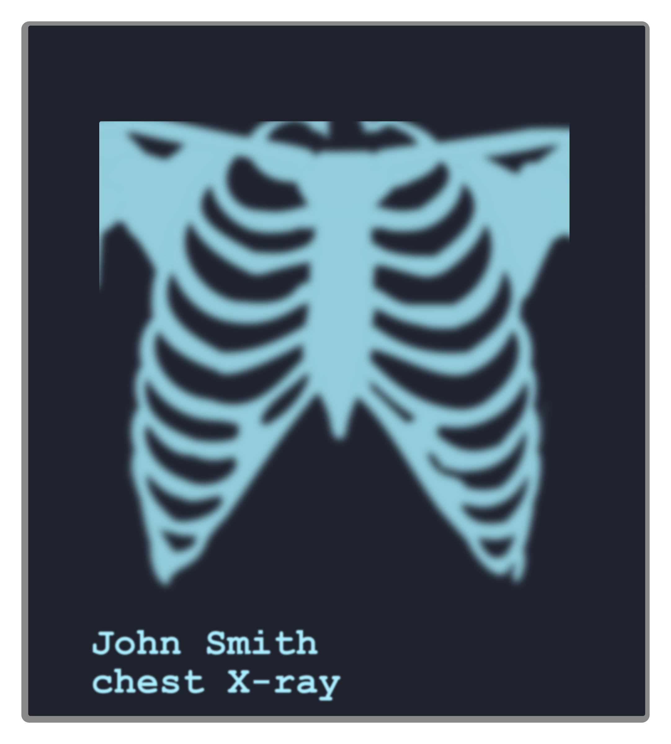 Chest X-ray image by Juhele