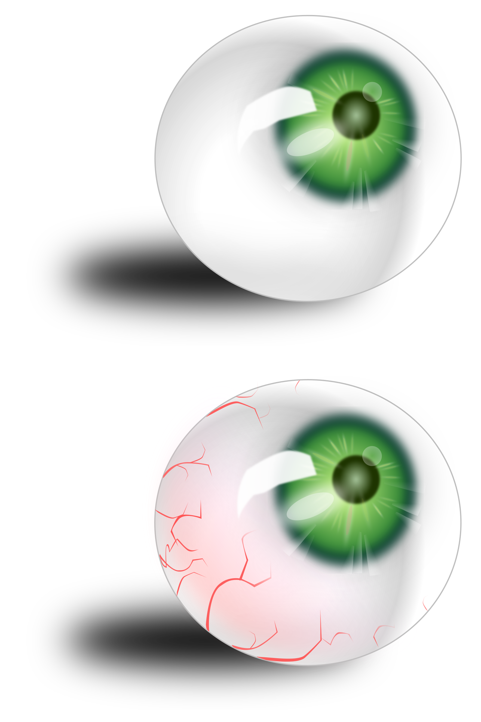 Eyeball green & bloodshot by moonhan
