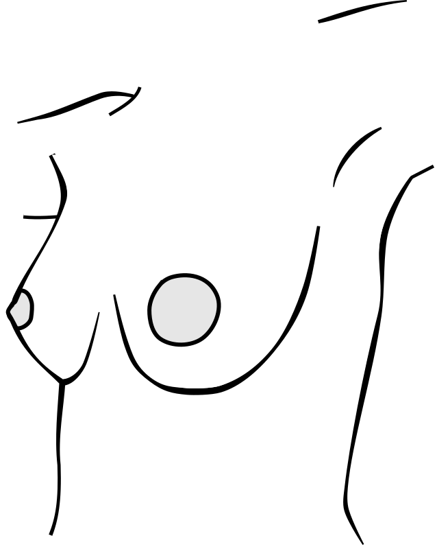 Nude female chest