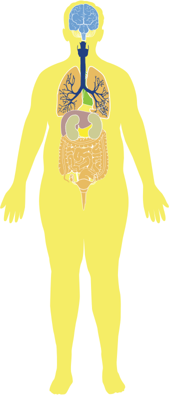 Obese Man Anatomy