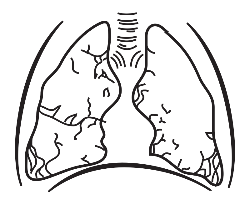 Lungs without Coloring