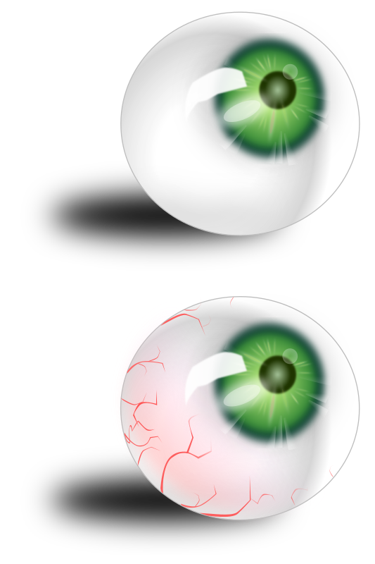 Eyeball green & bloodshot