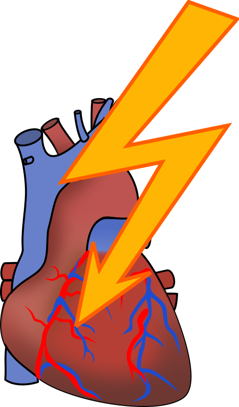 Heart attack by Moini - Symbol for a heart attack. Smoking causes the vessels of the heart to be blocked so the heart cells do no longer get blood and oxygen and then die. Part of a series about the adverse effects of smoking.