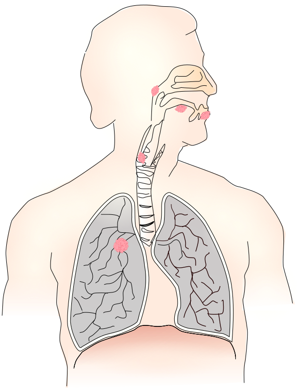 Cancer caused by smoking I by Moini - Diagram showing the common types of cancer smoking causes in the airways. Part of a series about the adverse effects of smoking.