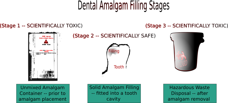 Dental Amalgam Filling Stages by cibo00 - Graphic created from the three stages description of amalgam lifespan (p.65).  Source: Daunderer M. (2011). Gifte im Alltag. München: C.H. Beck, 3 ed.