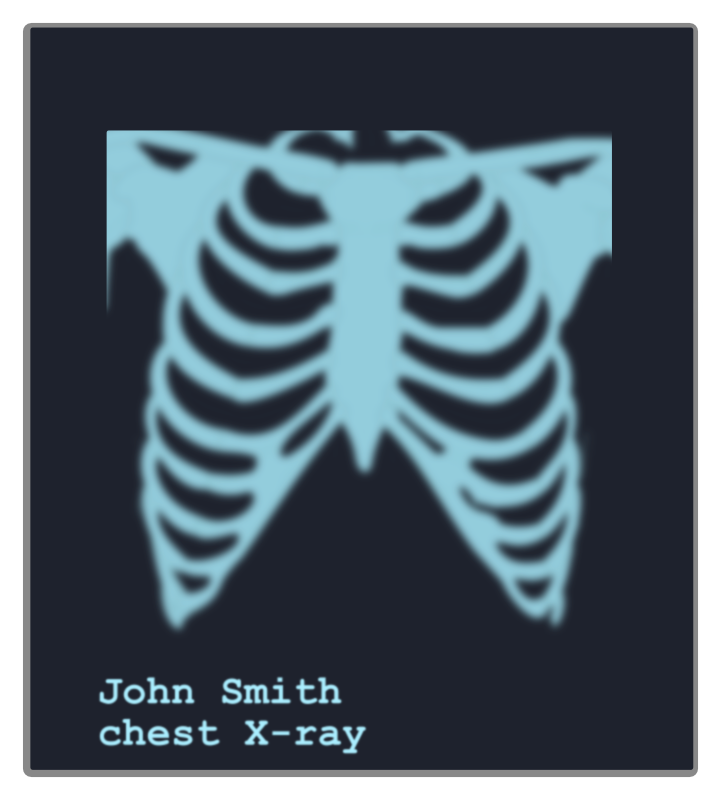 clipart chest x ray image x ray clip art preschool x ray clip art for kid